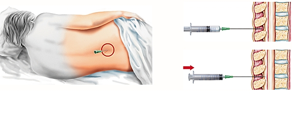 Les effets secondaires d'une péridurale - Cimod
